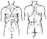Схема проведения баночного массажа: 1 - при остеохондрозе позвоночника, люмбаго; 2 - при пневмониях, бронхитах; 3...